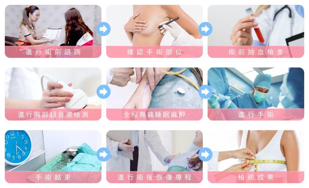自體脂肪隆乳 手術流程