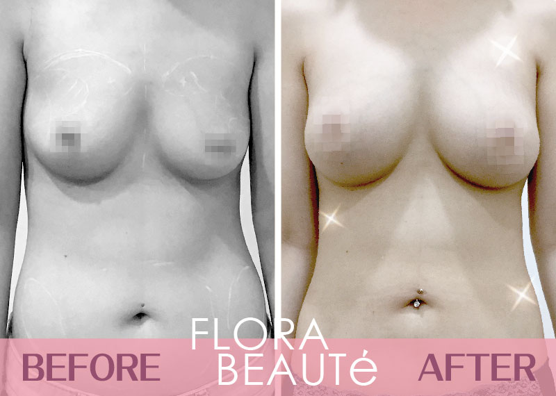庭庭-自體脂肪隆乳 術前術後對比
