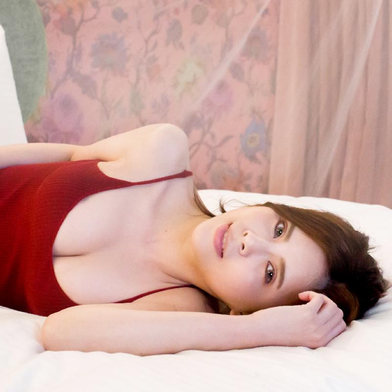 庭庭-自體脂肪隆乳 術後照