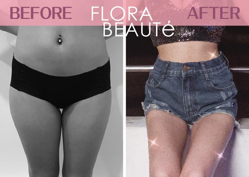 YUKO-自體脂肪隆乳 術前術後對比