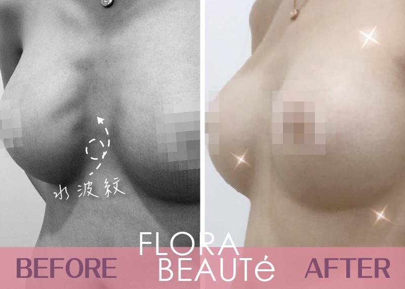 複合式隆乳 凱蒂術前術後對比照